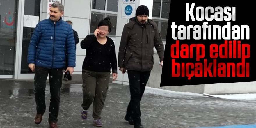 Kadın, kocası tarafından darp edilip bıçaklandı